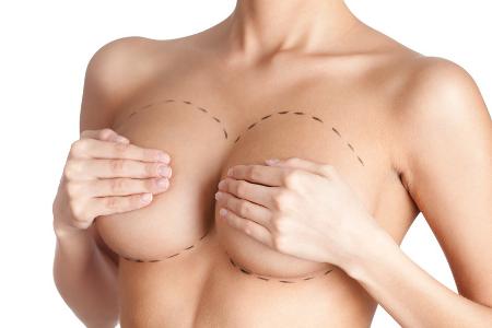 Brustvergrößerung Erfahrungen   Die häufigsten Fragen und ...